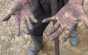 """PEC 57A/ 1999 - PEC do Trabalho Escravo - Emenda Constitucional 81 - Qual será a definição de """"trabalho escravo""""?"""