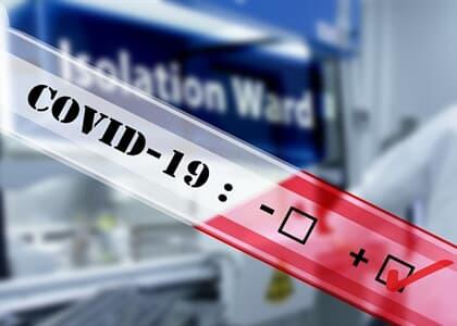 Estado da BA deve custear exame de covid-19 a servidor