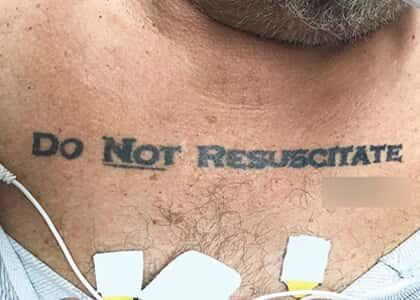 O pleito no peito (Do not resuscitate)